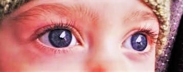 Anya's Big Blue Eyes (2)